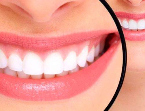 Consejos para antes y después de un blanqueamiento dental